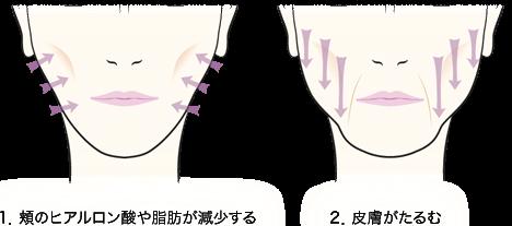 1.頬のヒアルロン酸や脂肪が減少する/2.皮膚がたるむ